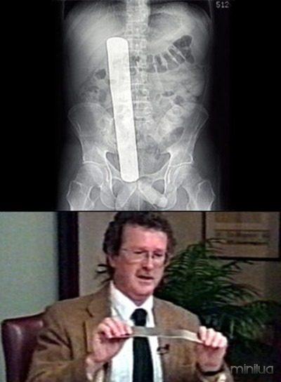 7-erro-medico