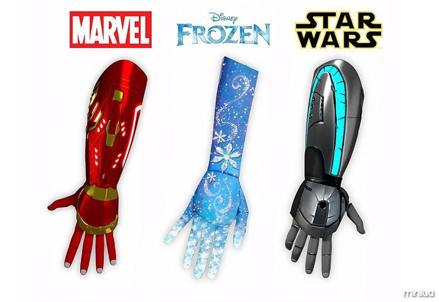prosthetic-hand-disney-heroes-open-bionics-6