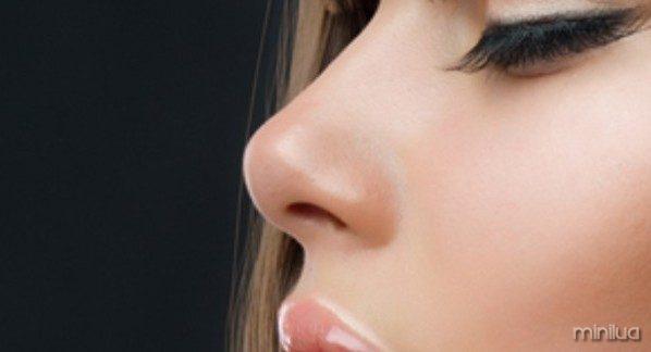 nariz-perfecta