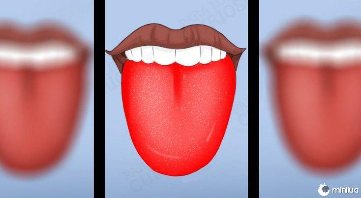 Os sintomas colorido língua brilhante vermelha