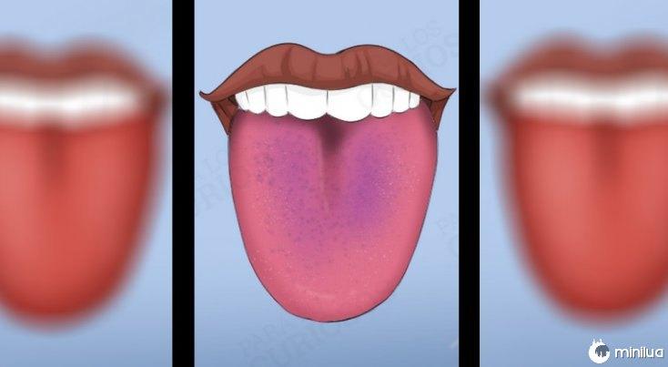 sintomas língua cor violeta
