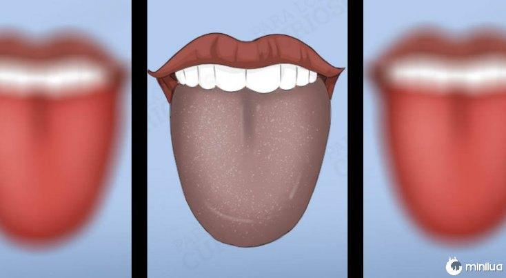 sintomas língua cor cinza