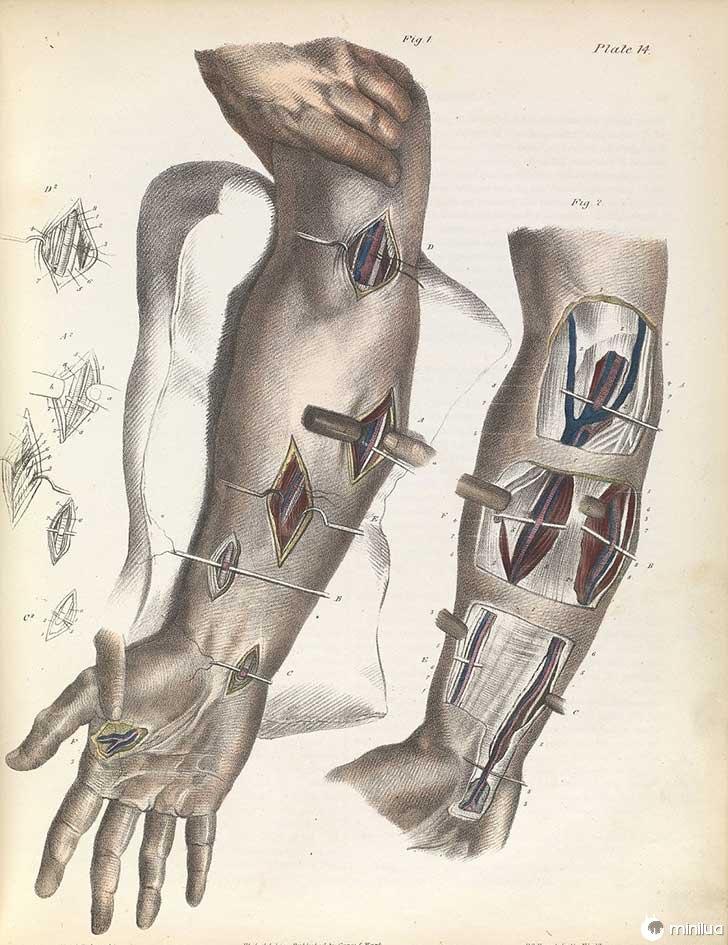 século barbara cirurgia 19 12