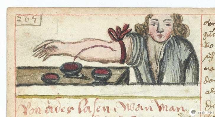 século barbara cirurgia 19 15