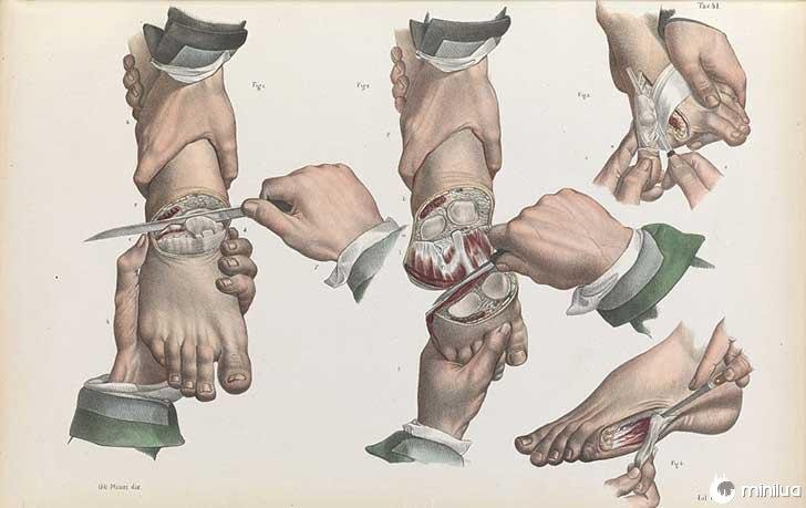 século barbara cirurgia 19 3