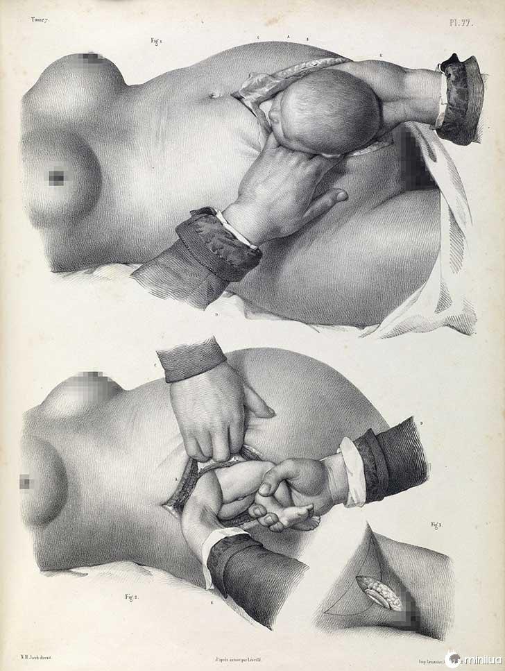 século barbara cirurgia 19 4