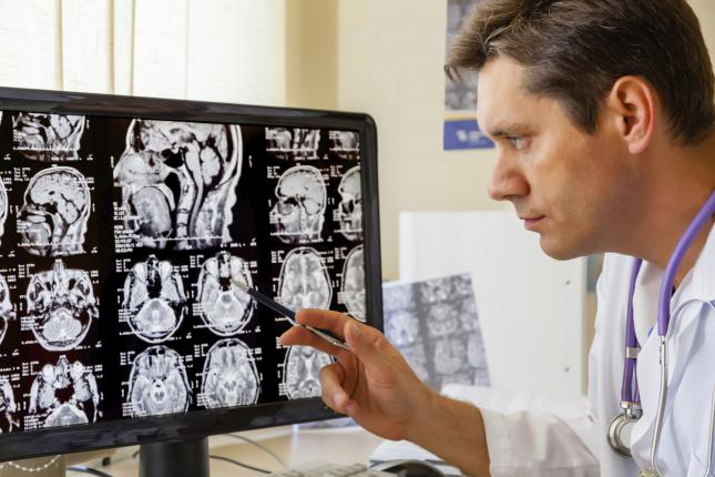 Efeito dominó no cérebro