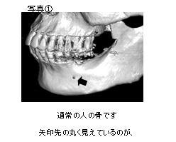 通常の人の骨です。矢印先の丸く見えているのが下顎の中にある下歯槽神経の出口(オトガイ孔)です