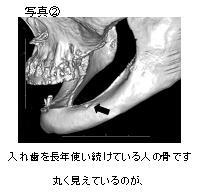 入れ歯を長年使い続けていたために顎の骨の厚みがこんなに薄くなってしまいました