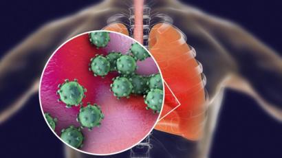 coronavirus-in-lungs