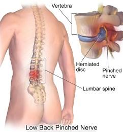 herniated disc causing pain [ 1500 x 1500 Pixel ]