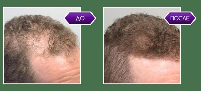 Minoxidil - средство для роста волос и бороды