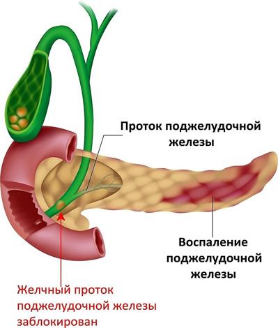 este posibilă pierderea în greutate cu pcos