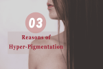 Top 3 Reasons of Hyper-Pigmentation