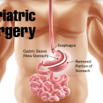 All You Need to Know About Bariatric Surgery