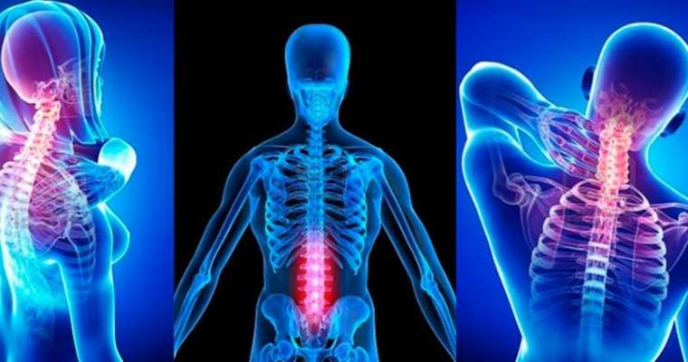How Chiropractic May Help Treat Sciatica