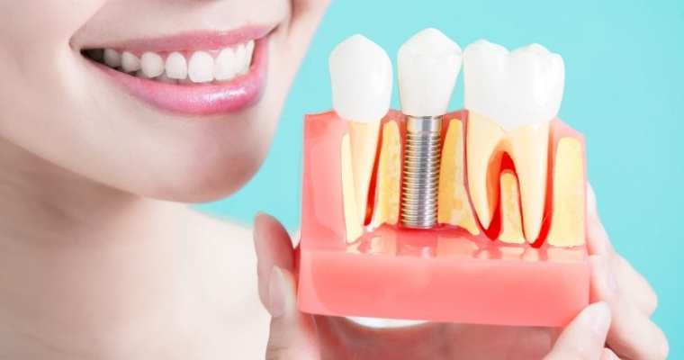 7 Tips for Maintenance and Care of Dental Implants