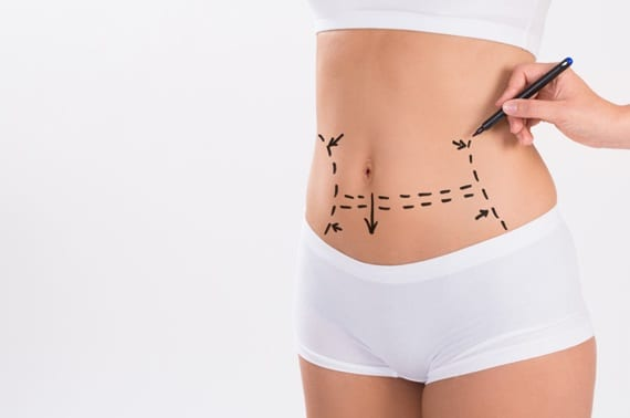 5 Different Types of Tummy Tuck Process That You Must Know