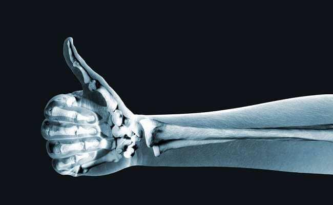 7 Natural Ways to Get Stronger Bones