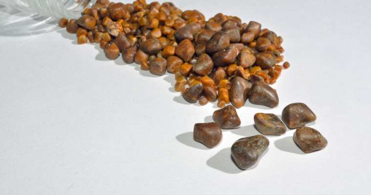 Removal of gallstones in Germany: diagnostics, methods, results