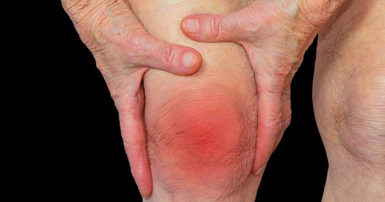 5 Natural Ways to Treat Arthritis Pain and Feel Better