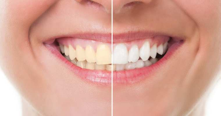 Know the Types of Cosmetic Dentistry Procedures
