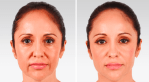 What You Should Know About Fillers