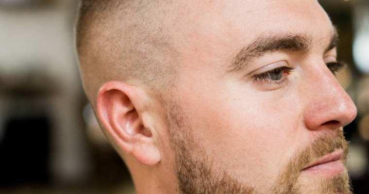 Hair loss and men's mental health