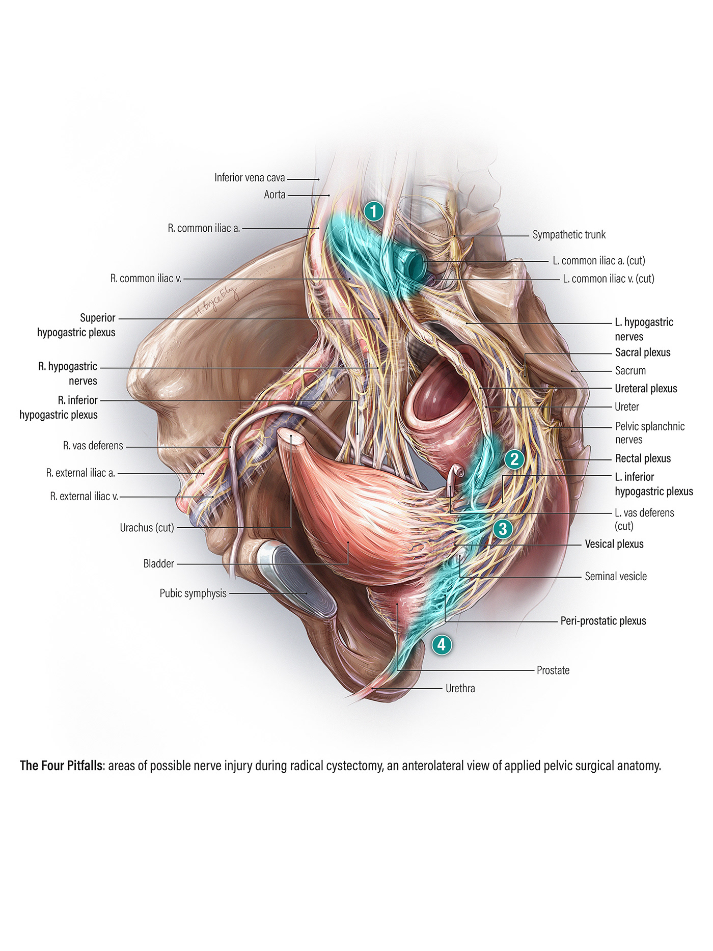 hight resolution of prostate nerve diagram