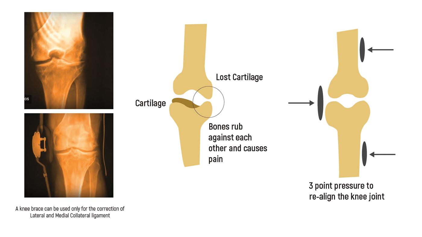 Knee Brace for Osteoarthritis - Metafix Ortho on Behance