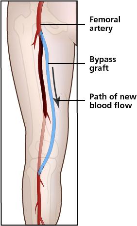 Digital Illustration / Medical Illustration on Behance