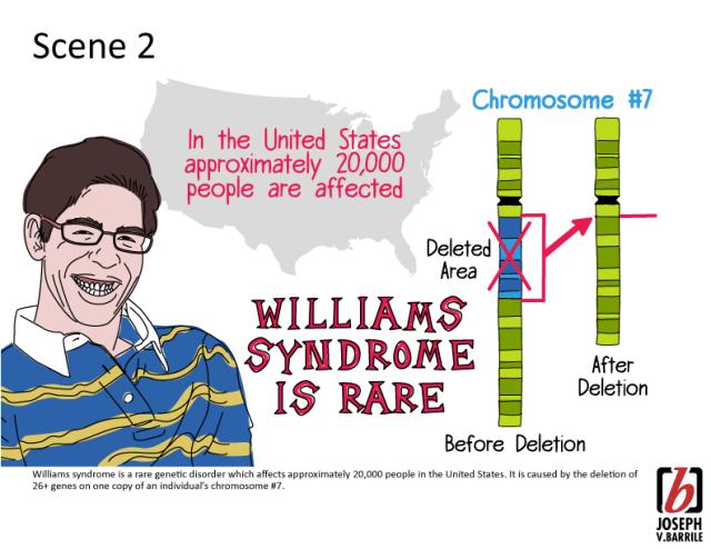Sindrom Langka - William Syndrome
