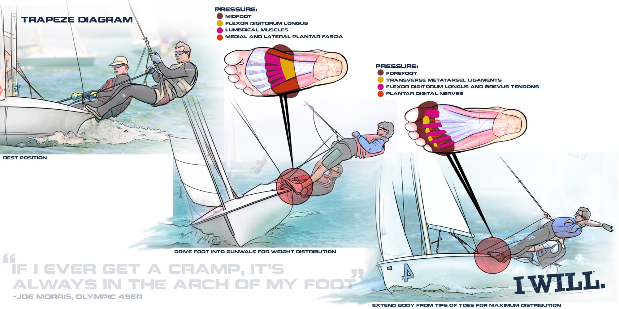 hight resolution of diagram of cramp