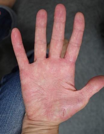 掌蹠膿疱症の手のひら(治療後)