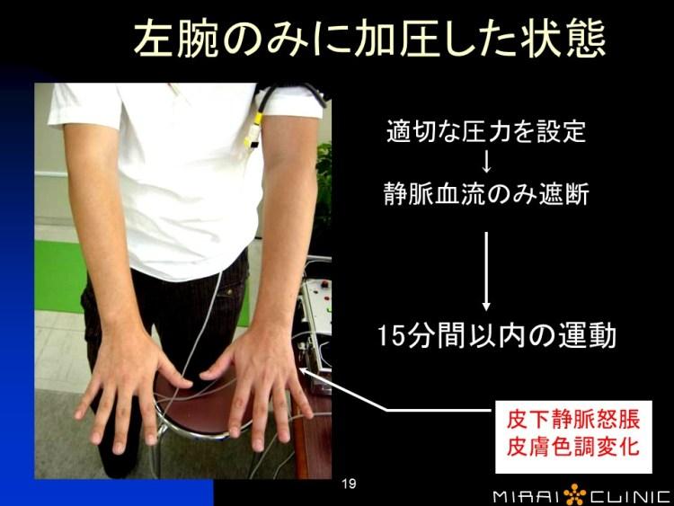 加圧した状態の腕