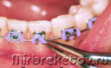 Это должен знать каждый кто выравнивает зубы что делать если брекет отклеился от зуба или натирает