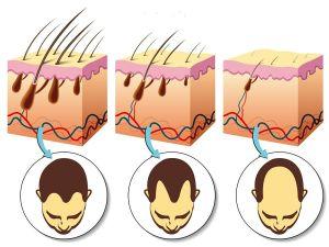 fases pelo-alopecia