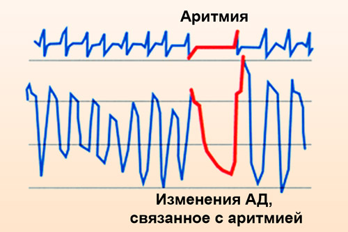 ЭКГ-да аритмия