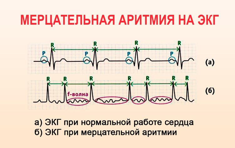 tachikardija hipertenzija liaudies gynimo)