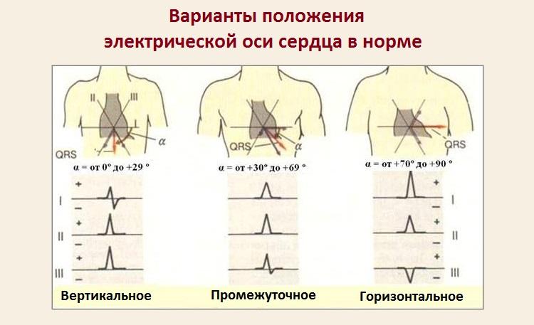 Электрическая ось сердца отклонена вправо у ребенка 1 год
