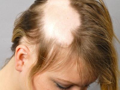 Почему выпадают волосы у девочки-подростка. Что делать, если у подростка выпадают волосы?