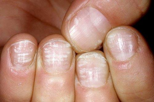На всех ногтях появились черные полоски. Почему на ногтях появляются чёрные полоски