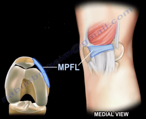 The Medial Patellofemoral Ligament of the Knee  Nabil
