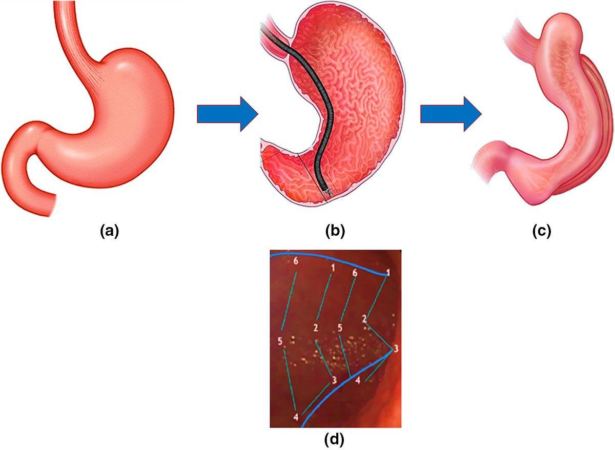 Laparoscopic Sleeve Gastrectomy (LSG) vs Endoscopic Sleeve ...