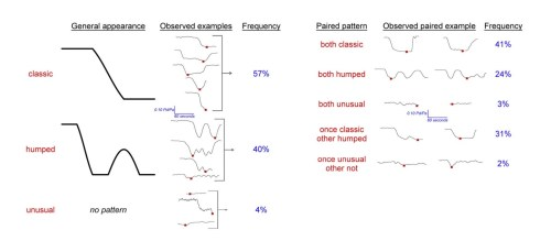 small resolution of sparklines used to assess cardiac fractional flow reserve example from edward tufte s website