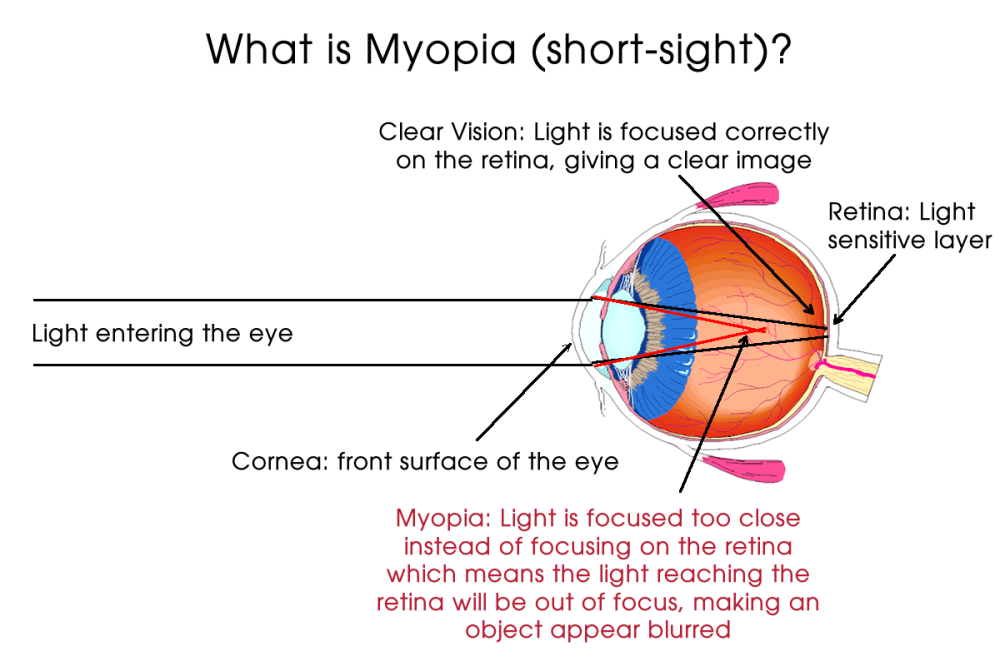 medium resolution of  away to the focal point inside the eye making the distance vision blurred myopia makes objects close by such as books and mobile phones appear clear