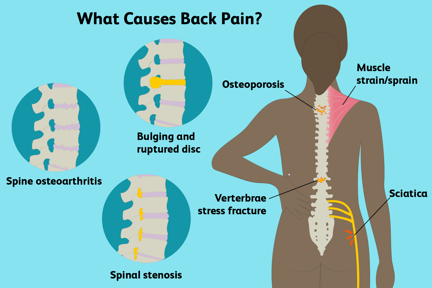 hight resolution of upper lower back pain causes