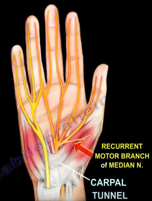 Ganglion Cyst Pressure Motor Branch of the Median Nerve ...