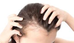बाल झड़ रहे हैं या बढ़ रहा है गंजापन, तो जरूर पढ़ें कारण और ये अचूक उपाय