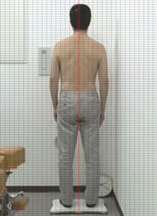 姿勢分析|つくばカイロプラクティックオフィスmisaki